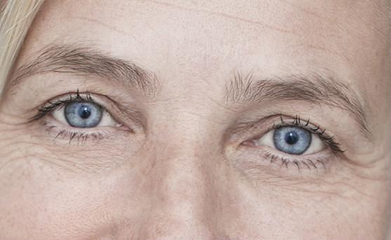 Irisfoto ogen Margreet